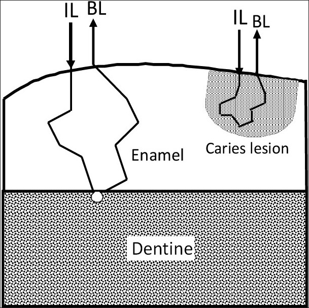 View image figure 10 schematic diagram showing the scattering process in sound and demineralized tooth enamel ccuart Gallery
