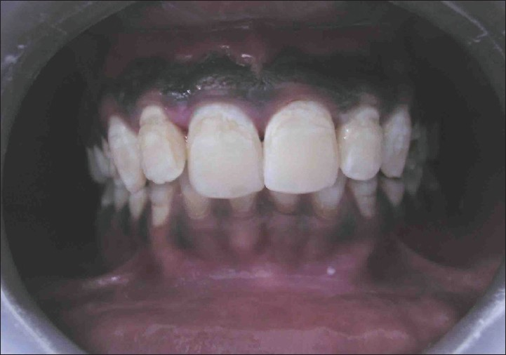 Figure 3: Post operative photo (case A)