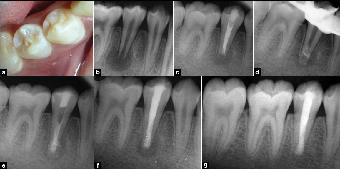 Figure 1: (a) Right mandibular second premolar showing the presence of dense evaginatus, (b) Preoperative radiograph of right mandibular second premolar showing deep pit communicating with pulp space along with blunderbuss canal and large periapical radiolucency, (c) 15 days recall radiograph after the placement of calcium hydroxide and iodoform paste, (d) Apical matrix of decalcified freeze dried bone allograft, (e) Apical plug of MTA created over the apical matrix, (f) 3 months followup radiograph showing reduction in the size of the periapical lesion, (g) 2 years follow-up radiograph representing complete resolution of the periapical lesion