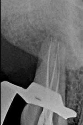 Figure 3: Working length radiograph showing files in all the four root canals