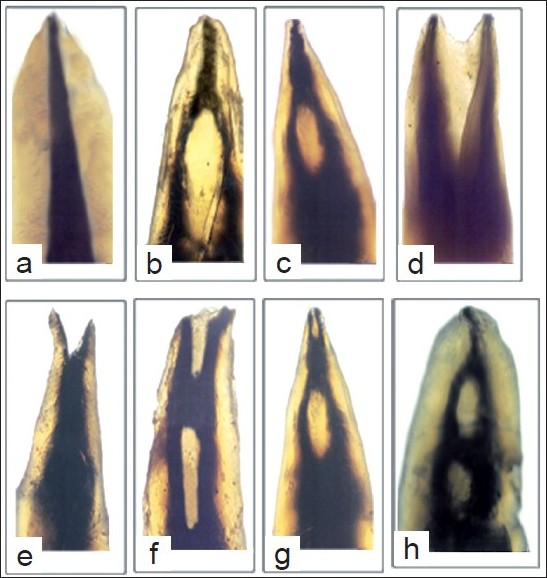 Root Canal Morphology Of Maxillary Second Premolars In An Indian