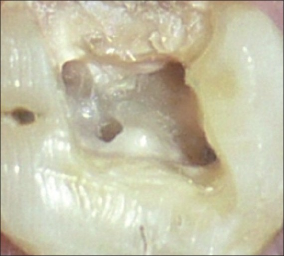 of a maxillary first molar