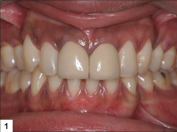 Figure 1: 11, 21 metal ceramic crowns with lack of translucency,