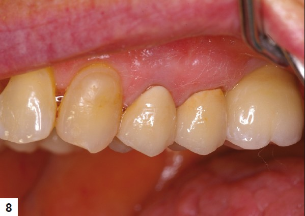 Dental ceramics: An update Shenoy A, Shenoy N - J Conserv Dent