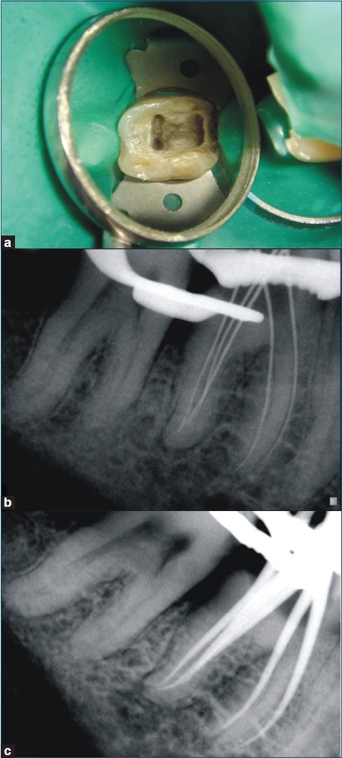 Spiral Computed Tomographic Evaluation And Endodontic