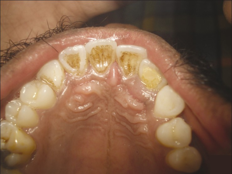 Retreatodontics In Maxillary Lateral Incisor With Supernumerary Root