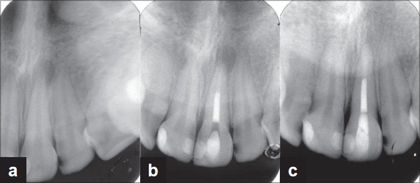 Figure 3: (a) Preoperative periapical radiograph of case 11; an 18-year-old male with chief complaint of sinus tract on maxillary left central incisor which was an immature necrotic tooth with history of trauma. (b) Postoperative radiograph after placement of CEM cement apical plug, warm vertical compaction of gutta-percha and sealer in the remained root canal space, and permanent coronal restoration. (c) Followup radiograph at 15 months after treatment. Sinus tract resolved and periapical lesion healed completely