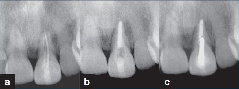 Figure 5: (a) Preoperative periapical radiograph of case 8; a 35-year-old female with chief complaint of buccal swelling and pain in palpation on maxillary left central incisor. The tooth had a previous inadequately obturated root canal treatment with apical resorption and a very slight apical rarefaction. (b) Post-operative periapical radiograph. (c) Follow-up radiograph at 12 months after treatment. The tooth was functional without recurrence of swelling and sensitivity to percussion and palpation.