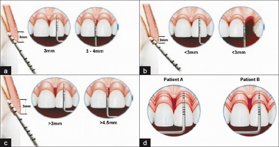 biologic width and its importance in periodontal and restorative dentistry nugala b santosh kumar b b sahitya s krishna p m j conserv dent