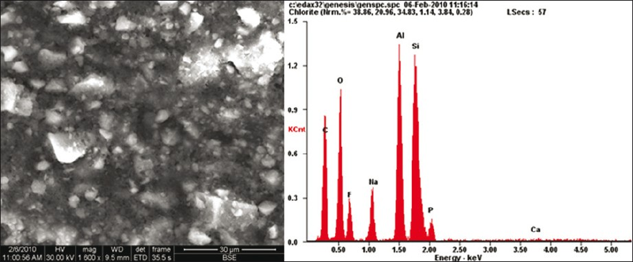 Figure 3: C. FESEM / EDX showing unset glass ionomer cement with mild self-etch bonding agent (pH 2.2)