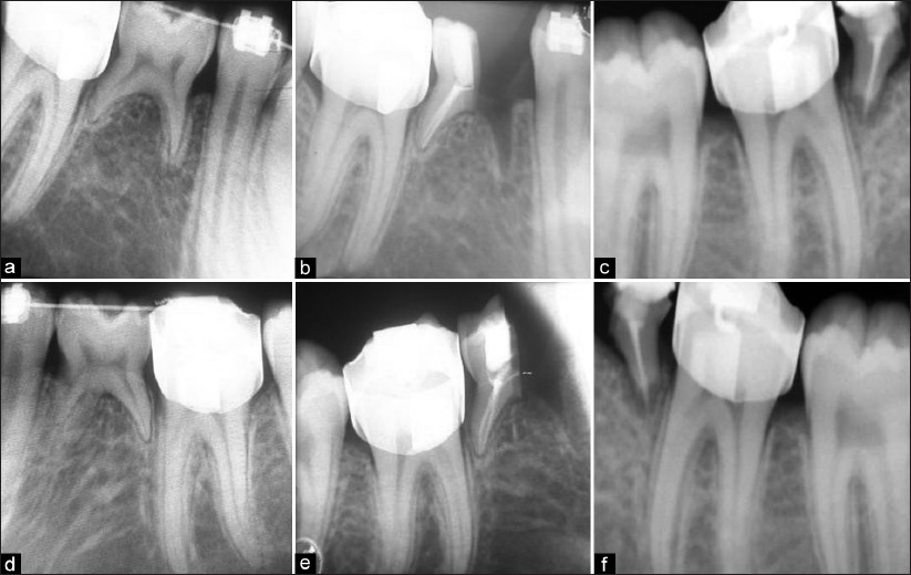 endodontic management of a mandibular second premolar Article explains about the management of mandibular second premolar with two roots and three canals  endodontic treatment, mandibular second premolar.