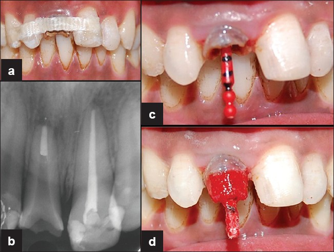 Figure 3: (a) Splinting of maxillary right central incisor with fiber splint. (b) Radiograph of the prepared post space in the root canal of the maxillary right central incisor of the patient. (c) and (d) Direct impression of post and core by using pattern resin.