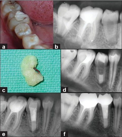 Figure 1: (a) Pre-operative photograph of the patient in the case study, (b) Pre-operative radiograph of the patient in the case study revealing an incompletely formed apex of mandibular right 2nd premolar, and with a diffuse radiolucency of about 0.5 x 0.5 cm around the apex. Obturation of #46 is also noted here, and not is not meeting acceptable standards, (c) Mineral Trioxide Aggregate apical plug placed in the root canal such that an apical stop approximately 3-4 mm thick is created, (d) Platelet Rich Fibrin Membrane obtained from the patient in the study, (e): Two month follow-up radiograph the patient in the study showing satisfactory healing, (f): One year follow-up radiograph the patient in the study showing satisfactory healing