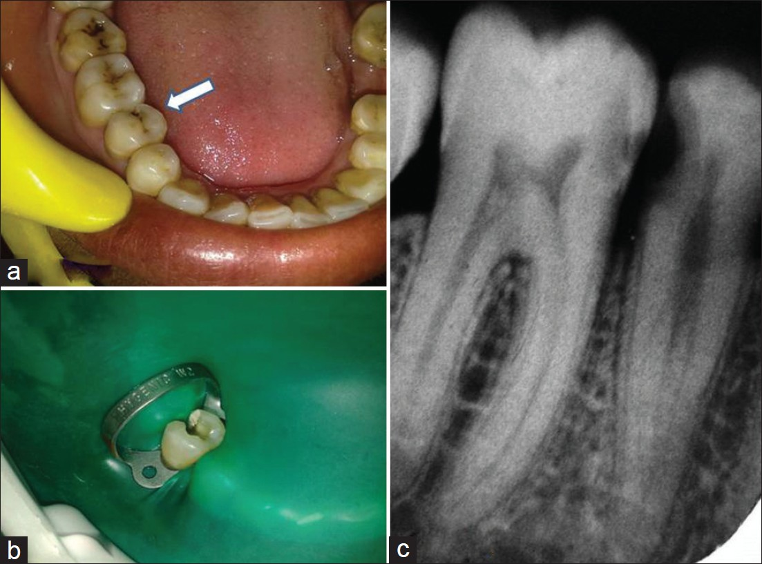 Root Canal Treatment Of A Mandibular Second Premolar With Atypical