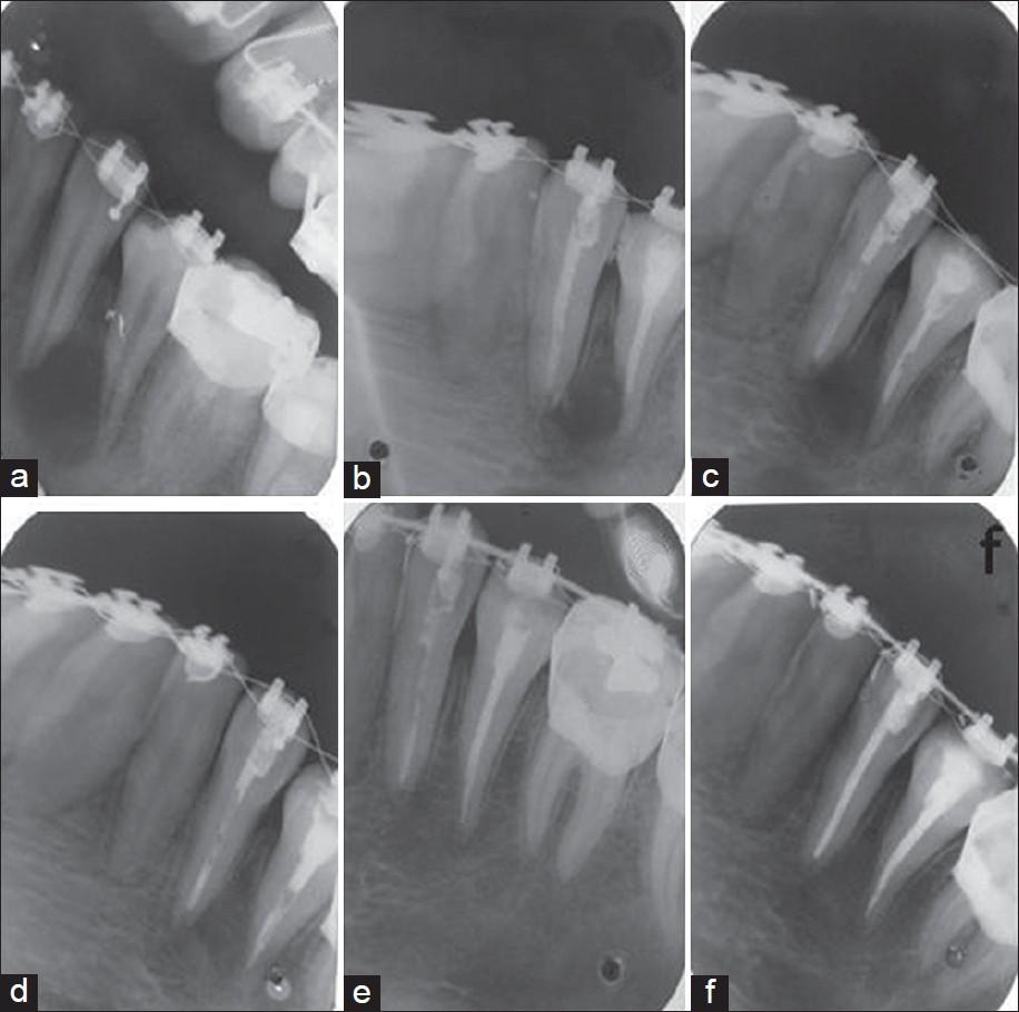 Tooth resorption part II - external resorption: Case series ...