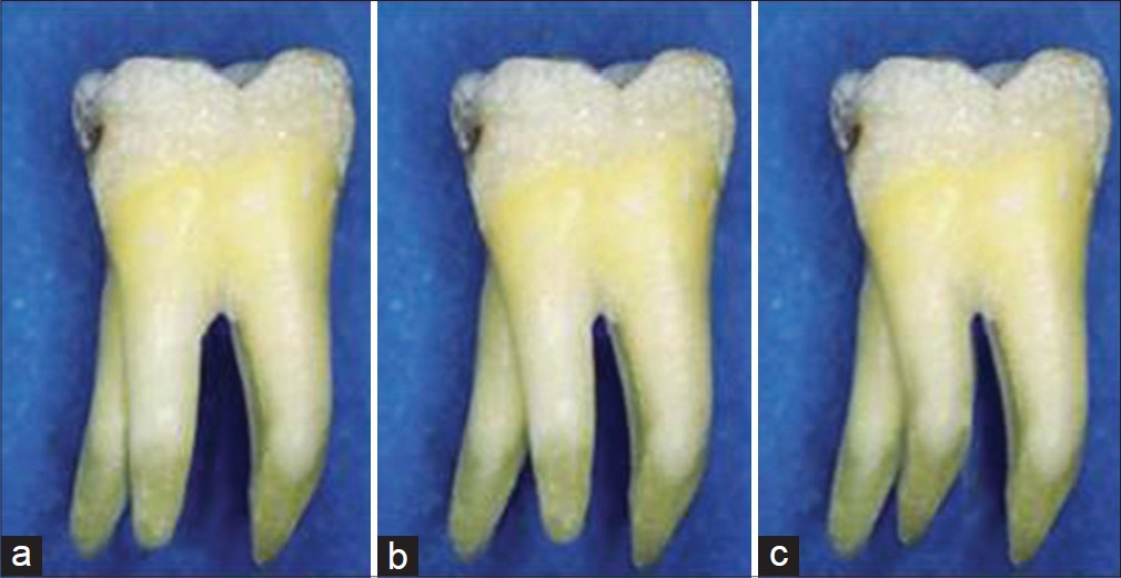 Displaying (17) Gallery Images For Wisdom Teeth Roots Curved...