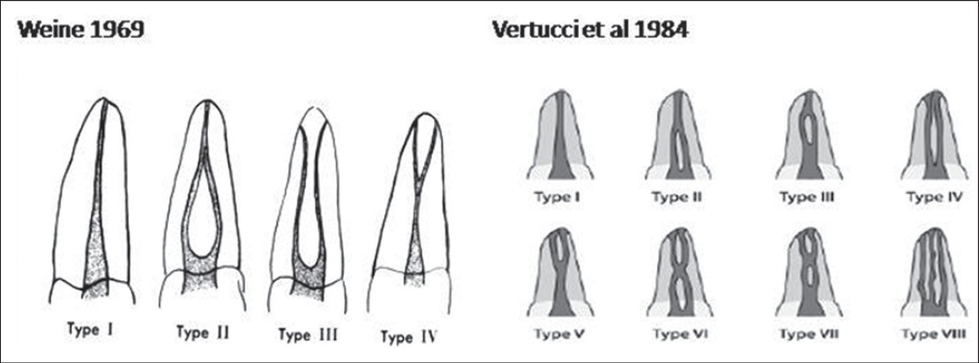 Variable Permanent Mandibular First Molar Review Of Literature