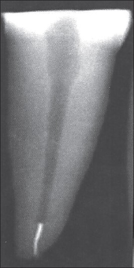 Figure 1: Radiograph showing separated RACE system
