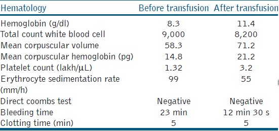 Table 1: Complete blood examination of the patient was performed before and after platelet rich plasma transfusion