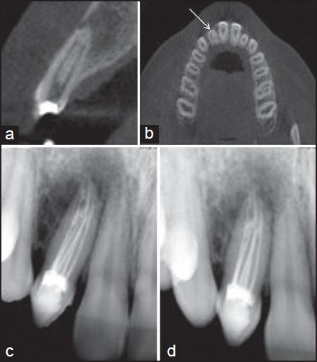 Cone Beam Scanning Cbct Scans Cbct Scanning Puresmile