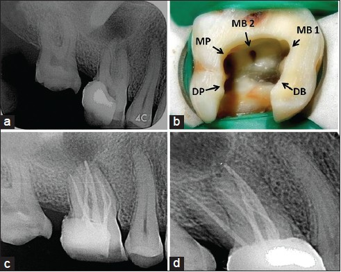 Cbct Diagnosis And Endodontic Management Of A Maxillary First Molar
