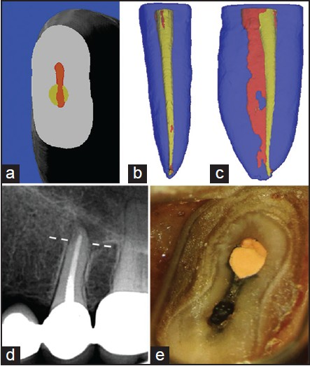 Figure 13: The illusion of evaluating root canal instrumentation and filling by 2D periapical radiographs. (a-c) A long-oval root canal that was instrumented using rotary files. Red: Before; yellow: After. (a) A cross-section, 5 mm from the apex. Note the round preparation and the un-instrumented