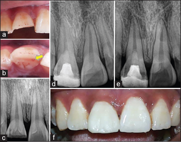 biodentine pulpotomy several days after pulp exposure four case reports borkar sa ataide i j conserv dent