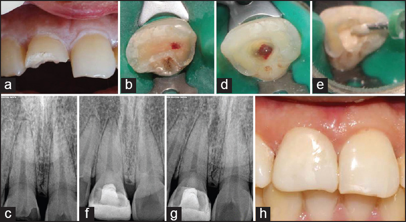 Figure 2: (a and b) Pre-operative photograph showing Ellis class III fracture in 11 with pulp exposure, (c) Preoperative radiograph revealing fracture in 11 with pulp involvement, (d and e) Partial pulpotomy performed in 11 and a 3mm layer of Biodentine placed over the exposed pulp, (f) Immediate post-operative radiograph showing 3mm barrier of Biodentine (g) Post-operative radiograph after 18 months shows a well-formed radio-opaque barrier with normal periodontal ligament space, (h) Post-operative recall photograph after 18 months