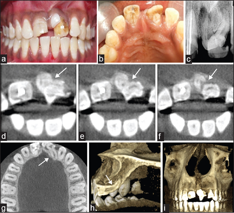 Management of synodontia between dilacerated permanent