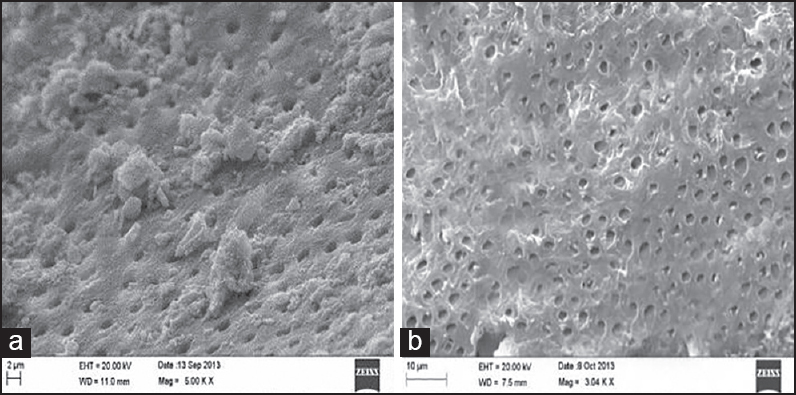 Figure 4: (a) SEM image Group 3 (b) SEM image Group 4