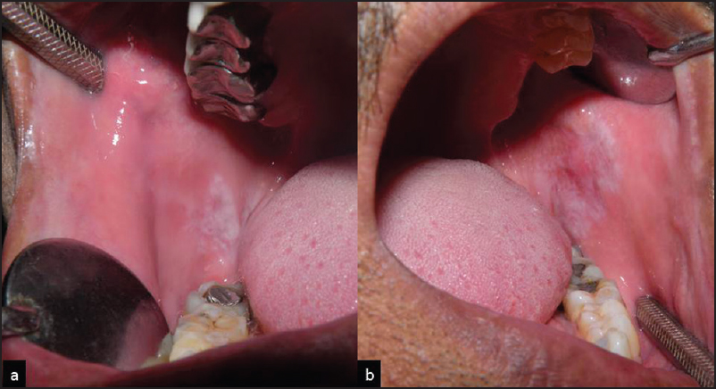 Figure 1: (a and b) Lesions on both right and left buccal mucosa present adjacent to amalgam restoration