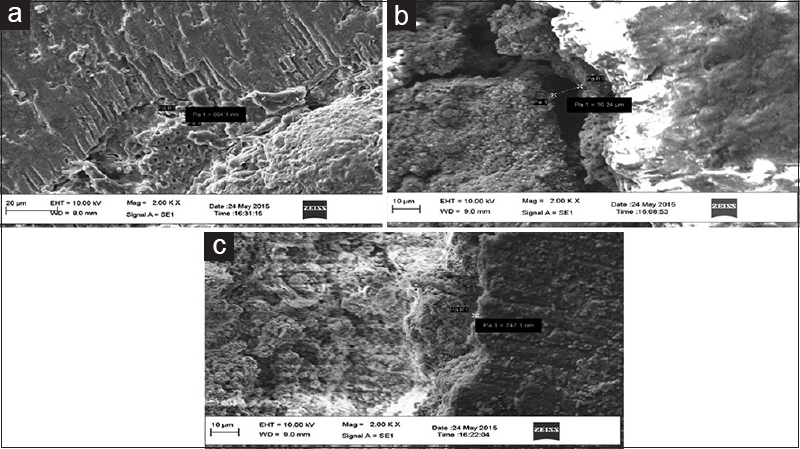 Figure 1: Scanning electron microscopic images of coronal halves, (a) MM-Seal (b) mineral trioxide aggregate Fillapex (c) EndoSequence BC sealer
