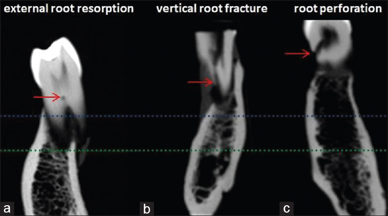 Figure 2: Parasagittal slice images, voxel size resolution of 0.125 mm obtained with cone-beam computed tomography (i-Cat Next Generation<sup>®</sup> and iCATVision image software): (a) external root resorption; (b) vertical root fracture; and (c) root perforation