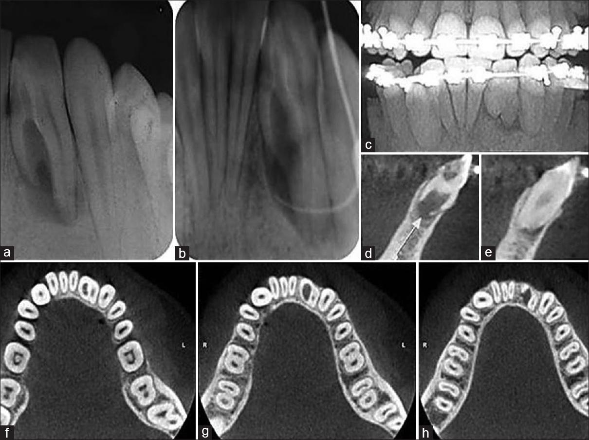 Root canal treatment of a fused mandibular incisor using cone-beam ...