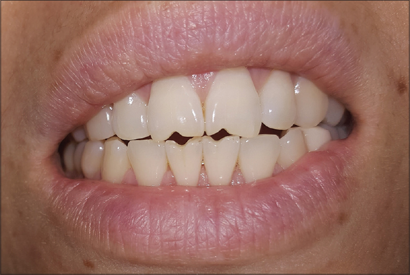 Figure 1 Dental Photograph Of The Patient Displaying Incisal Edge Abrasion In Relation To Upper And Lower Central Incisors