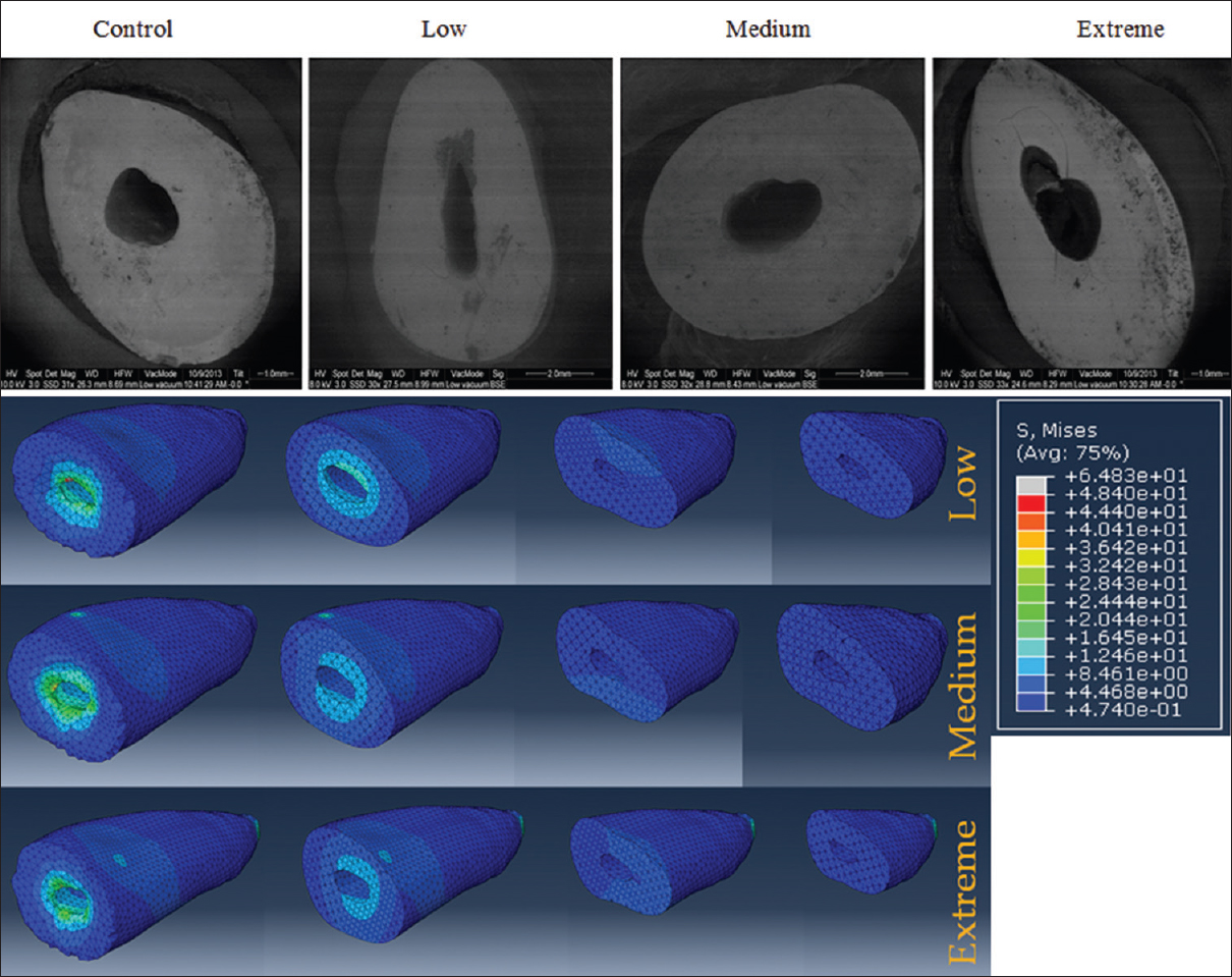 Figure 3: (a) Microcrack analysis of samples after mechanical cycling load based on the different degree of dentin removal and (b) stress distribution analysis