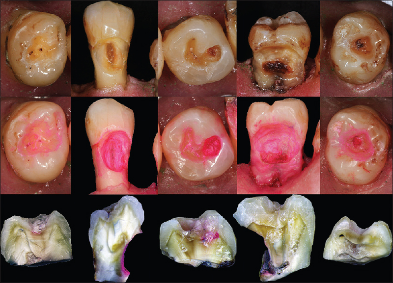 Figure 1: 1<sup>st</sup> row Teeth lesions after the random removal of carious tissue. 2<sup>nd</sup> row Stained lesions after the application of caries detector dye. 3<sup>rd</sup> row Histopathology after the longitudinal section of the teeth