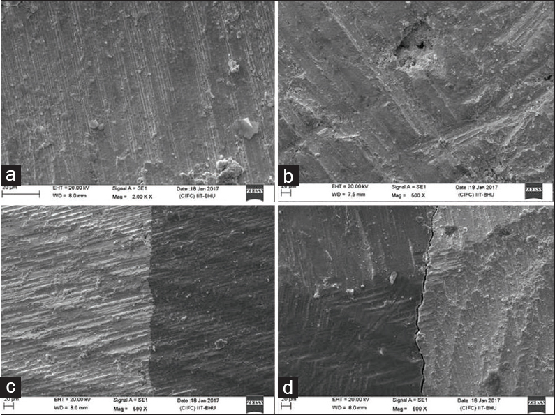 Figure 2: Scanning electron microscopic photomicrograph showing acceptable restoration (a and c); (b) Void within the restoration; and (d) Gap between tooth and restoration