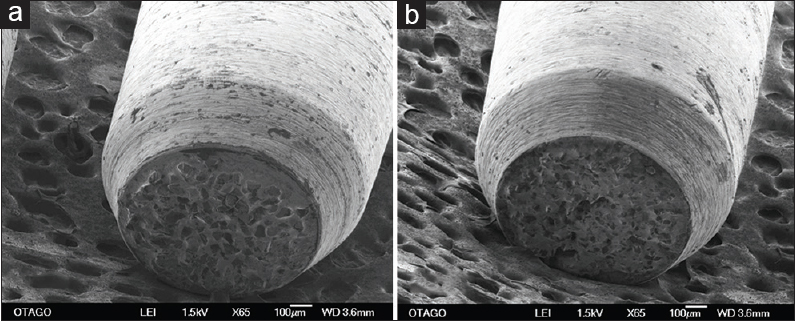 Figure 2: Scanning electron microscope image of rotary instrument tissue guard end-cutting (bur) (×65). Only the tip is uniformly coated with diamond particles. The extremity of the shaft is also beveled inward to avoid the production of any undercuts during placement of finishing lines. (a) Scanning electron microscope image of tissue guard end-cutting bur, grit 60 μm, (b) scanning electron microscope image of tissue guard end-cutting bur, grit 45 μm