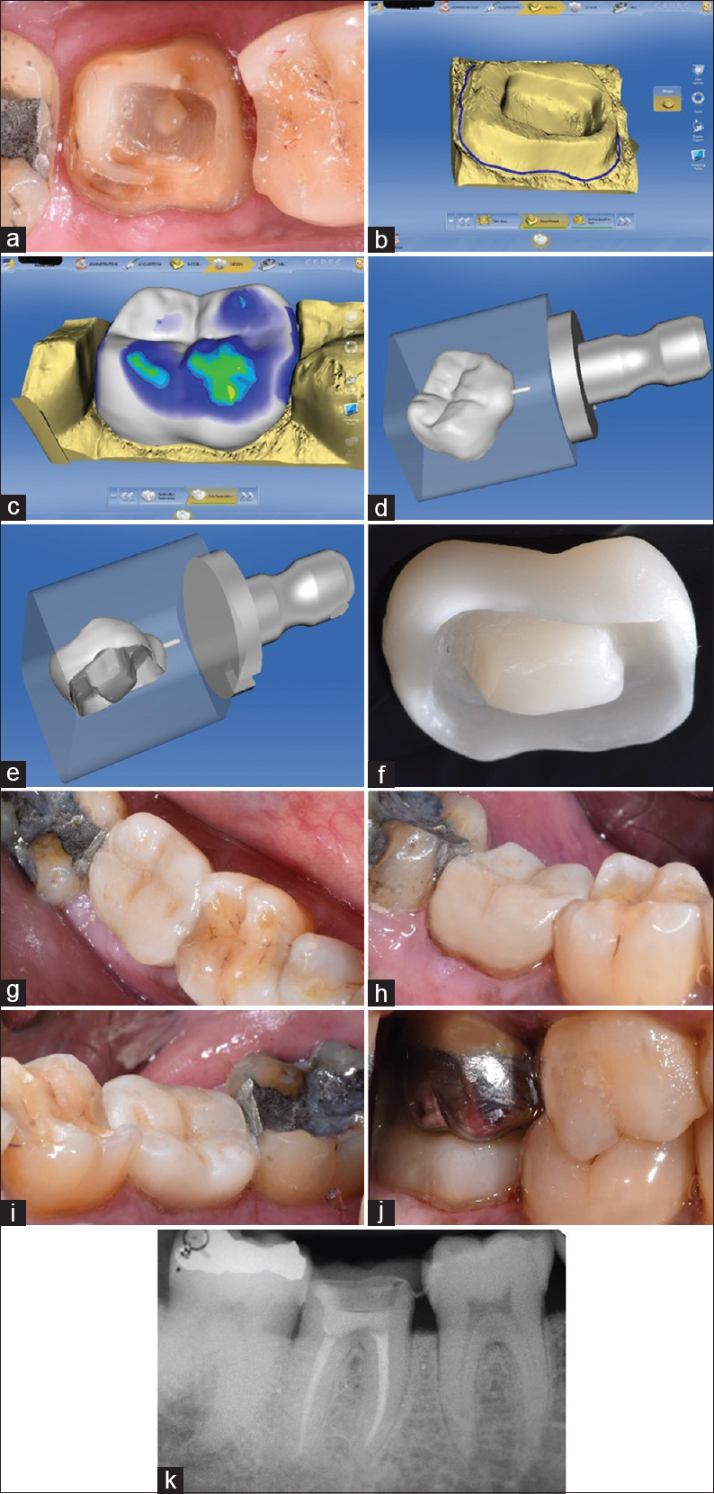 Figure 2: (a) Modified endocrown preparation. (b) Computer.aided design and computer-aided manufacturing outline of the margin, (c) Endocrown designing using the CEREC system. (d) Occlusal view of the premilled endocrown. (e) Pulpal view of the premilled endocrown. (f) Postmilling endocrown. (g) Occlusal view conforming to the anatomy of the tooth 47. (h) Buccal view showing good marginal adaptation. (i) Lingual view showing the satisfactory clinical crown height. (j) Endocrown in occlusion with the upper metal crown of tooth 17. (k) Postoperative radiograph of tooth 47